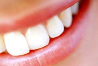 реставрация зубов, реставрация зубов Краснодаре
