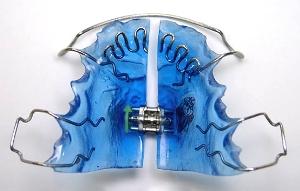 ортодонтические пластинки для детей краснодар, ортодонтические пластинки для детей