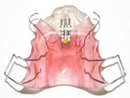 ортодонтические пластинки для взрослых краснодар, ортодонтические пластинки для взрослых