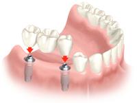протезироание зубов Краснодар