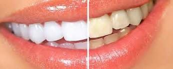 Косметическая чистка зубов