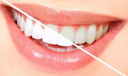 Косметическая комбинированная чистка зубов